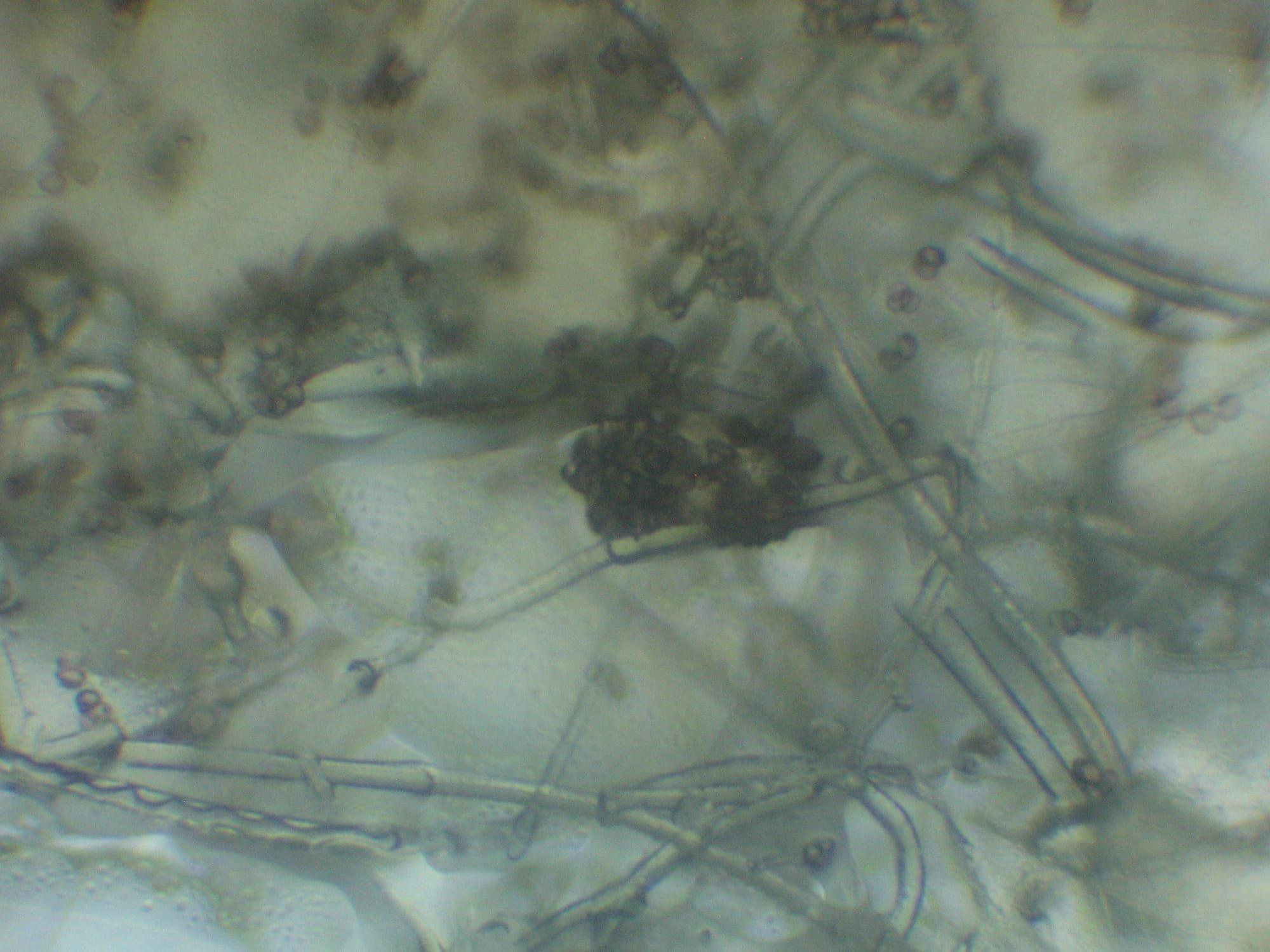 Blakeslea trispora sporangioli