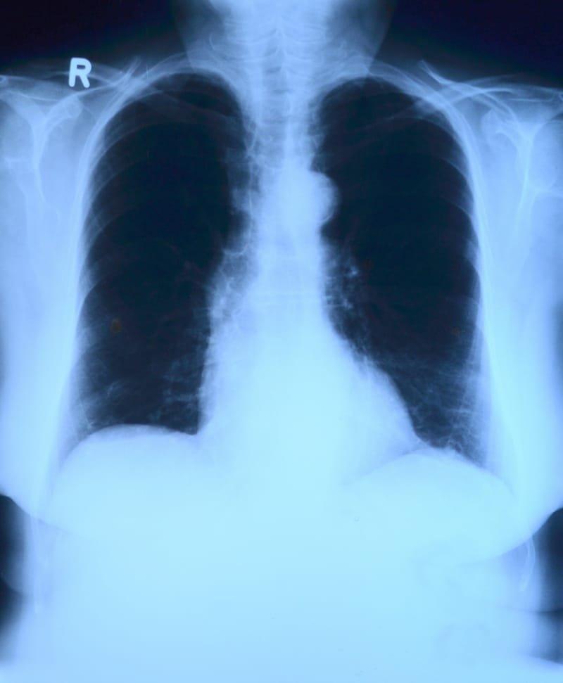 Outpatient Cardiopulmonary Rehab