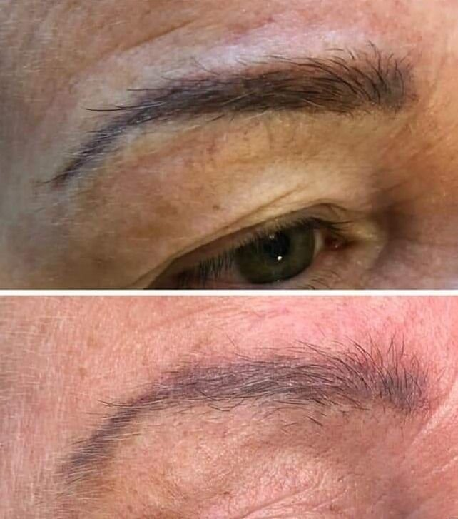 PERMANENT MAKEUP  REMOVAL AND CORRECTION