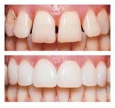 טיפולי שיניים אסתטיים