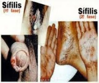 obat virus sipilis paling ampuh di apotik dijamin sembuh total