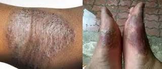obat gatal menahun di kaki yang tidak kunjung sembuh