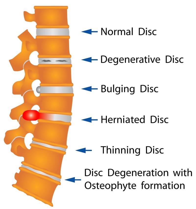 Lower back pain/Degenerative Disc Disease/Degenerative Joint Disease/Arthritis/Bulging Disc/Herniated Disc