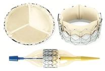 Reconstruction percutanée des bifurcations pulmonaires après chirurgie des cardiopathies congénitales