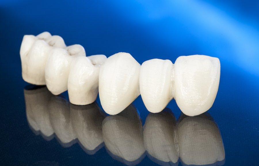 cure dentali, dentisti in Albania