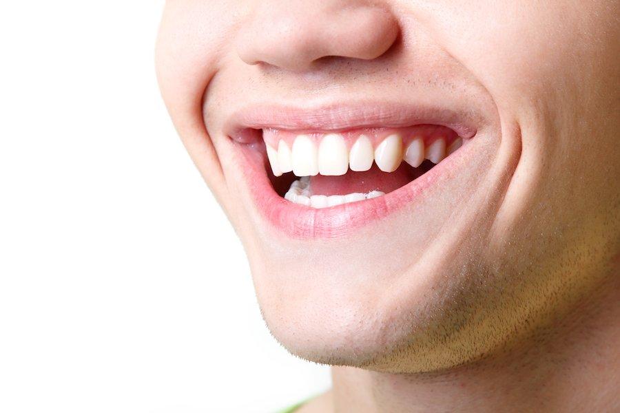 cosmesi dentale a Durazzo