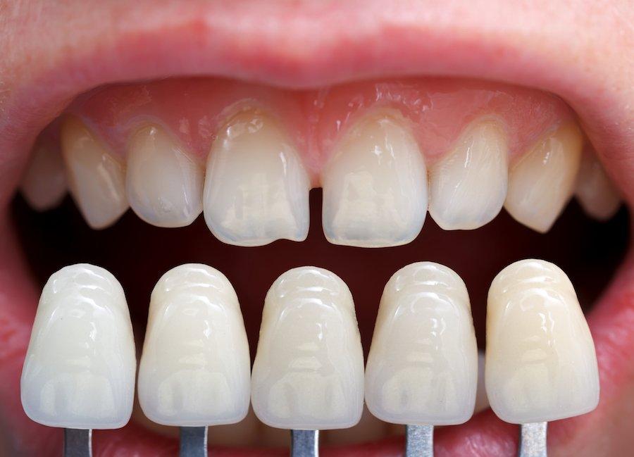 aspetto estetico denti