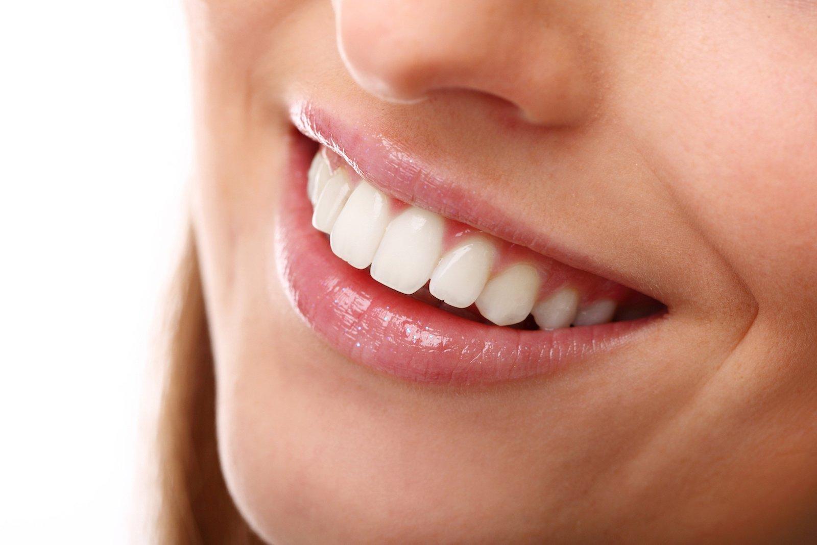 fluorazione denti