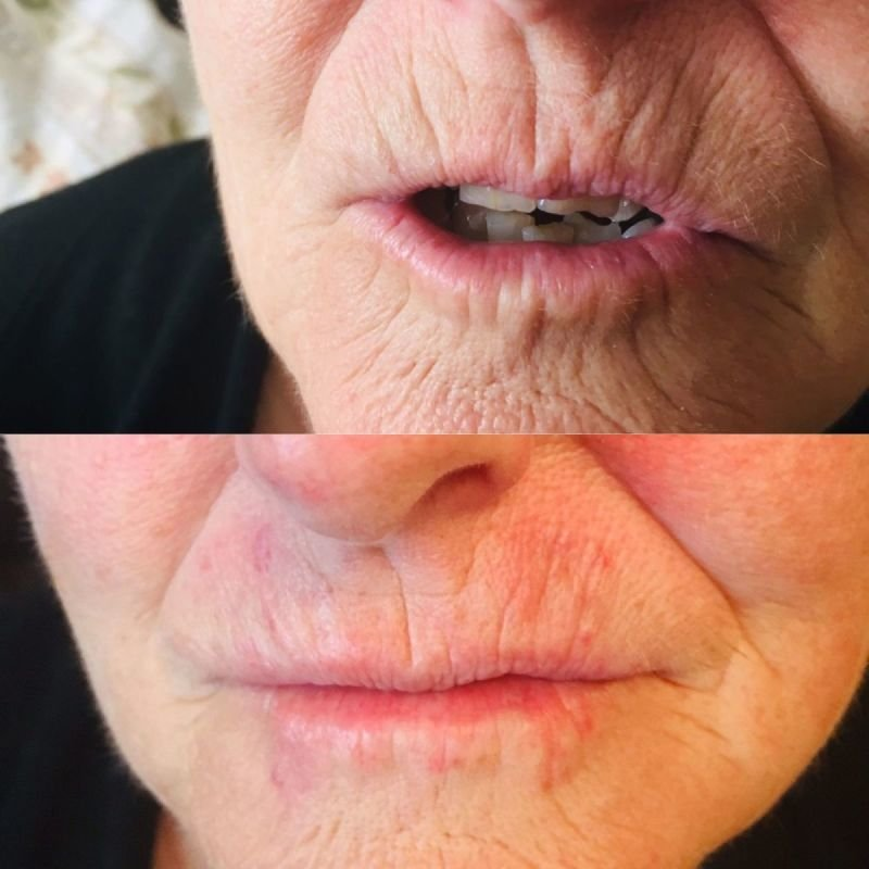 filler in upper and bottom lip lines