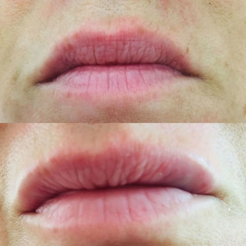 soft lip filler
