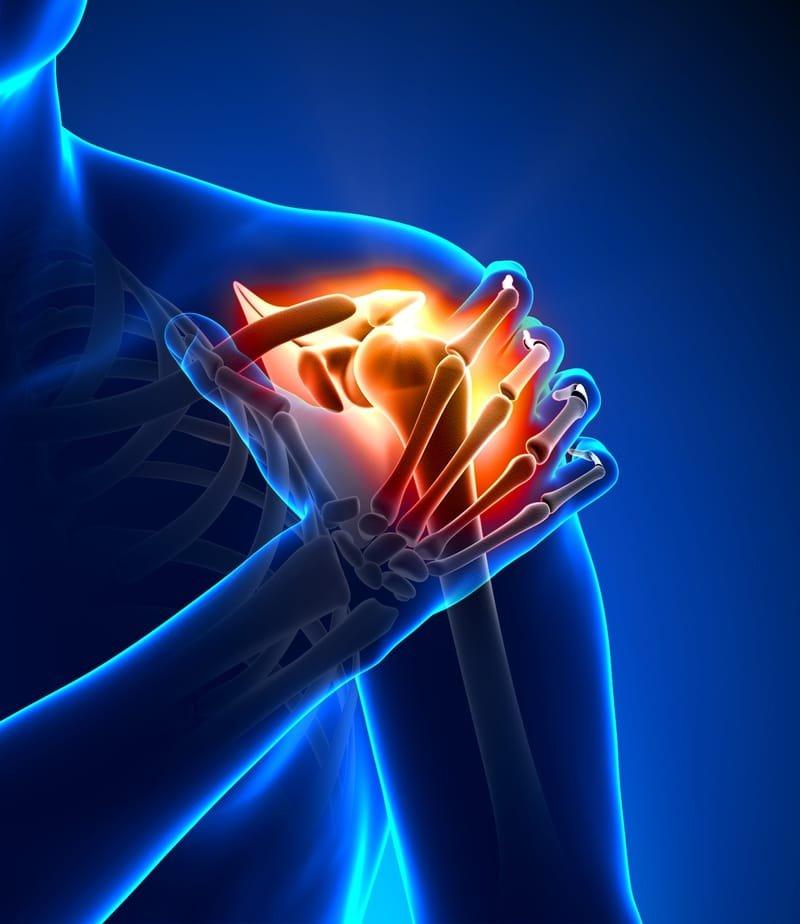 מניעת ניתוח בכתף