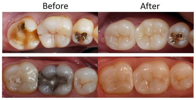 CAD-CAM Dental Restorations