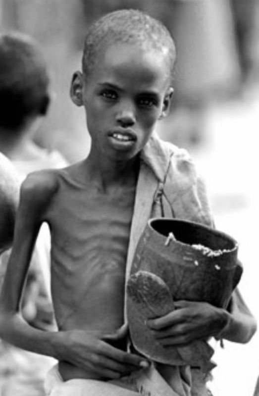 CAUSES OF WORLD HUNGER