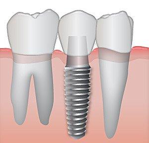 Dental Implant Upper East Side