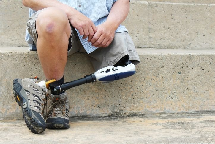 Guidelines for Selecting a Prosthetic and Orthotics Company