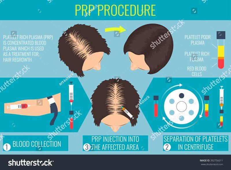 Terapie PRP - estetica medicala