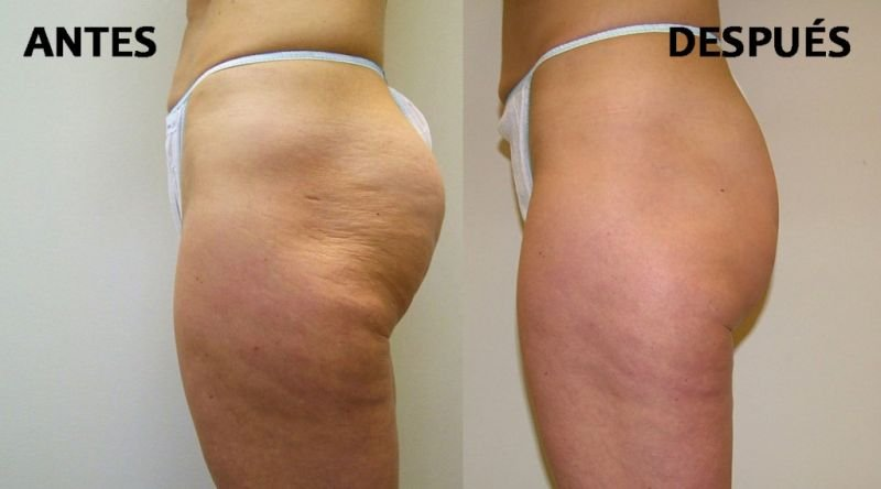 CAVITATION (Liposuction without surgery - Destroys Fat)