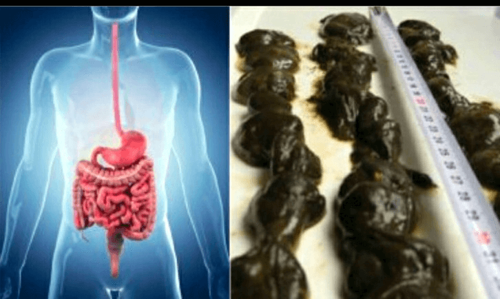 how to remove mucus forming foods from your diet